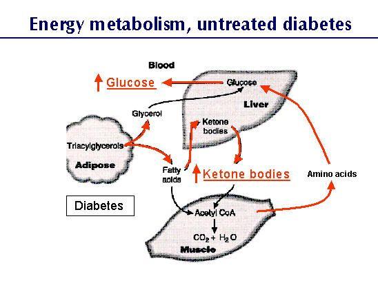 diabetes bohb dka